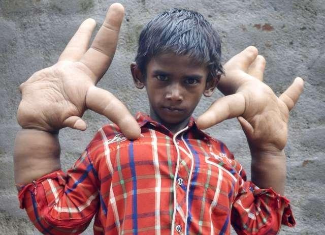 Dünyanın en büyük elli çocuğu!