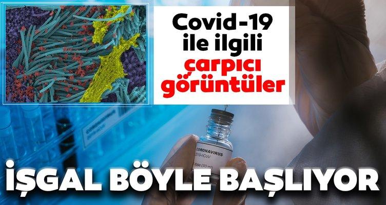 Son dakika haberi: Covid-19 ile ilgili çarpıcı görüntüler! Vücudu böyle işgal ediyor