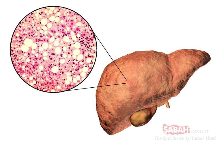 Karaciğer yağlanmasını önlemek için ne yapmak gerekir? İşte karaciğer yağlanmasını engelleyen 10 önemli tavsiye