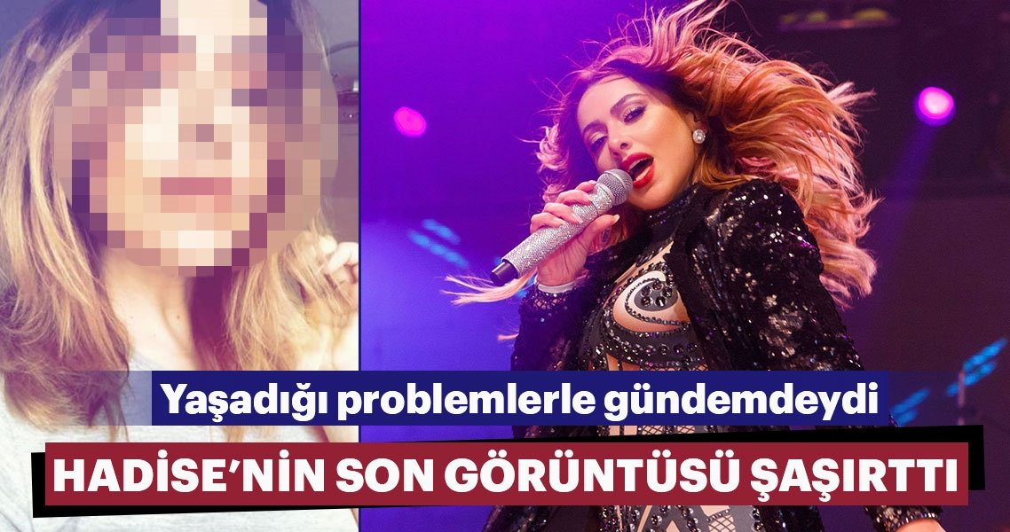 Ünlü popçu Hadise, annesi Gülnihal Açıkgöz'ün intihara teşebbüs etmesiyle sarsılmıştı. Bir süredir ailesiyle problem yaşayan güzel şarkıcı estetik mi yaptırdı?