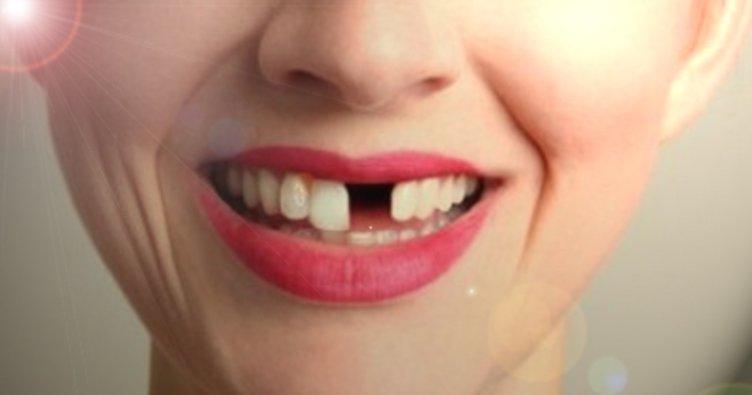 RÜYADA DİŞ DÖKÜLMESİ - Rüyada diş kırılması, diş çıkması ve diş düşmesi neye işarettir?