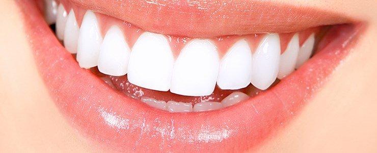 Zerdeçal Ile Doğal Diş Beyazlatma Sayfa 8 Sağlık Haberleri