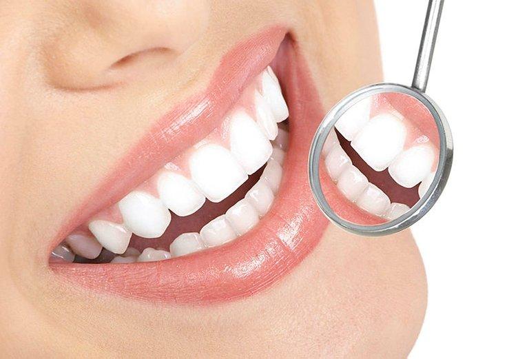 Çürük dişleri ve lekeleri anında tedavi ediyor!