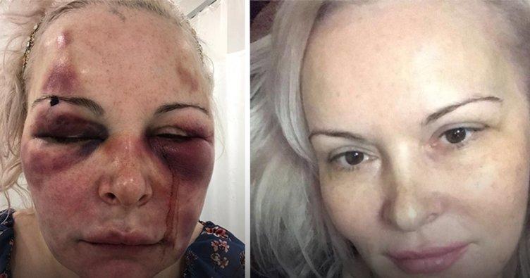 SON DAKİKA: İstanbul'da Rus turist otel odasında dehşeti yaşadı! Tam 5 saat boyunca...