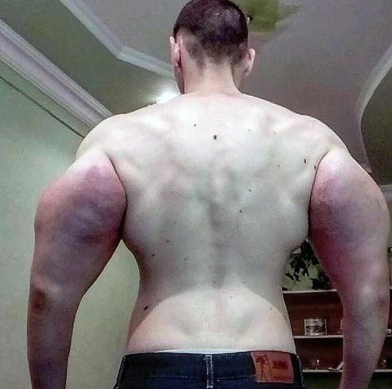 Kollarına enjekte ettiği sıvı nedeniyle kolları kesilebilir...