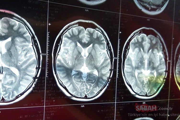 Uzmanlar uyardı! Beyin kanamasının ilk belirtisi...