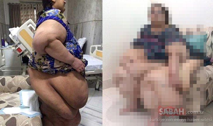 Tuvalete bile gidemiyordu… 2 senede 175 kilo verdi