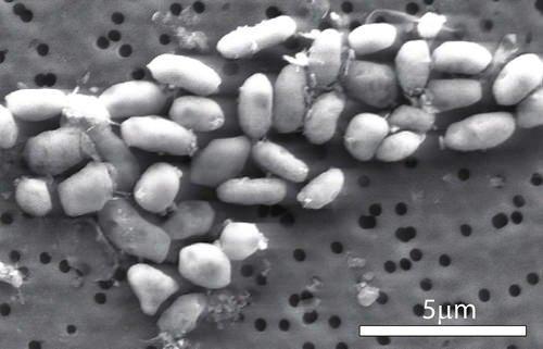 Twitter'da bakteri geyikleri