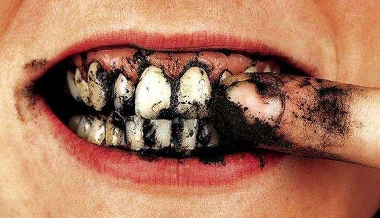 Diş beyazlatma yöntemleri işe yarıyor mu?