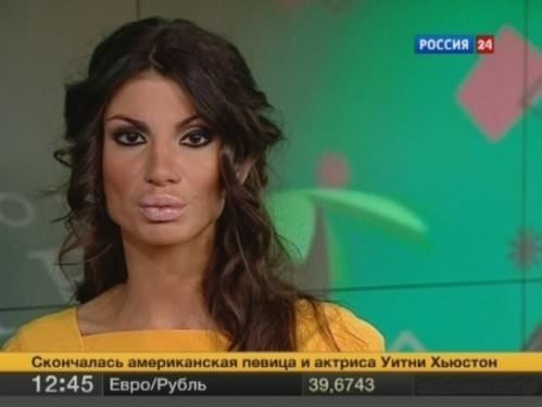 Rusya'da yeni moda Angelina dudağı