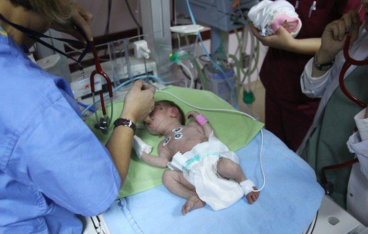 2 haftalık bebeğin mucize kurtuluşu