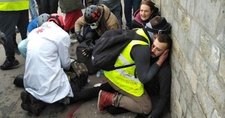 Fransız polisinden şiddet: 1 göstericinin eli koptu