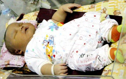 Doğuştan sumocu bebek