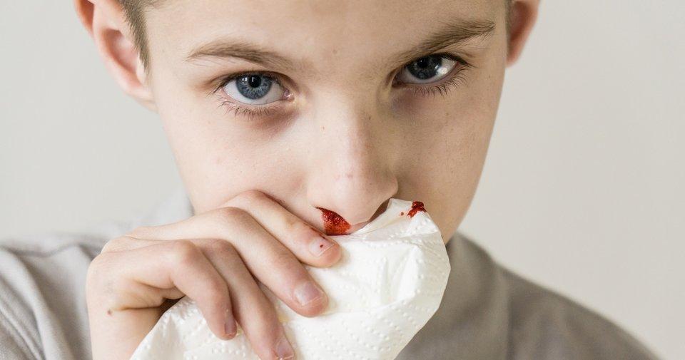 Çocuklarda burun kanamasının nedenleri nelerdir? Burun kanaması ...