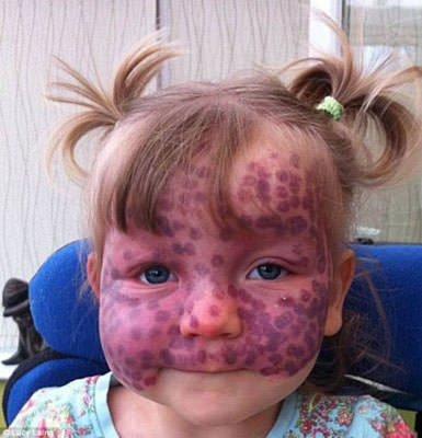 Dünya'nın en garip hastalıkları