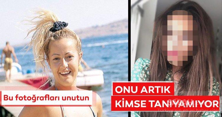 Hülya Avşar'ın kardeşi Helin Avşar'ı artık kimse tanıyamıyor! Helin Avşar'a estetik operasyonları yaramadı!