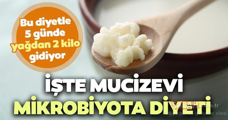 Bu diyet ile mikrobiyotanızı düzenleyip 5 günde 2 kilo vereceksiniz