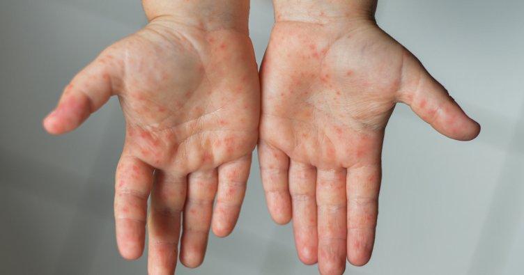 Çocuklarda el, ayak ve ağız hastalığına dikkat!