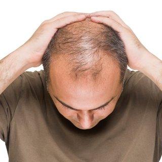 Bu besin saç dökülmesini anında durduruyor! İşte saç dökülmesini durduran etkili besin