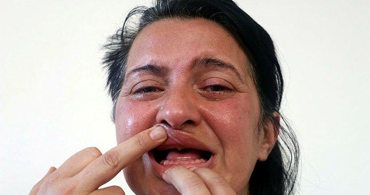 Delirten hastalığın devasını Gülhane'de buldu