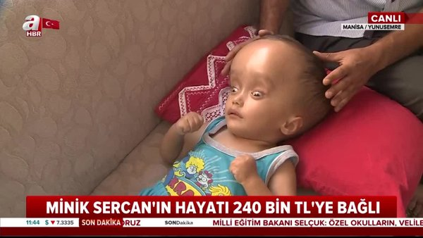 Manisa'da yürek burkan görüntü! 2 yaşındaki Sercan hidransefali hastası... Yaşamak için 240 bin TL'ye ihtiyacı var   Video