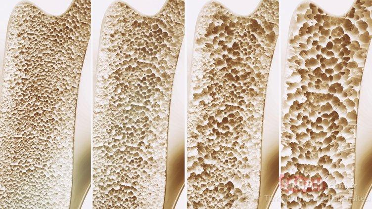 Günlük hayatta yaptığımız bu hata kemik erimesine neden oluyor! İşte osteoporozun nedenleri