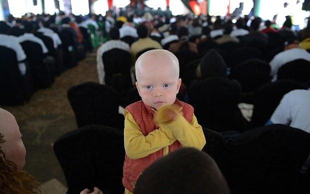 Kenya'daki albinolar büyücülerin kıskacında