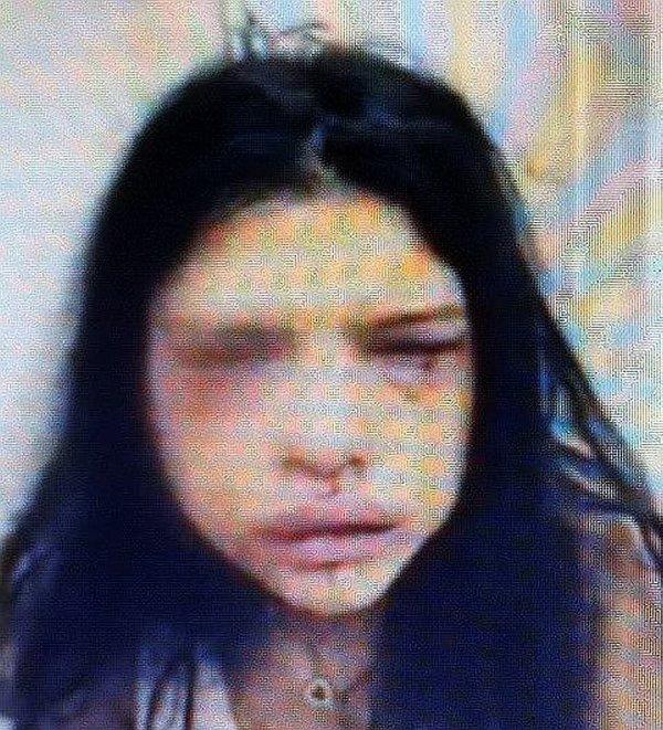 Özbizerdik'in eski sevgilisi çark etti: Burnumu onur kırdı