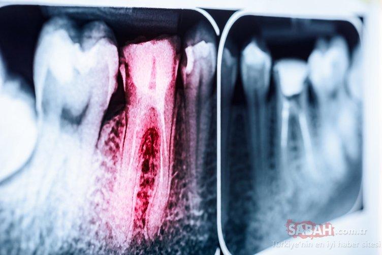 Çürük diş sorununu bitiriyor! İşte en etkili besin...