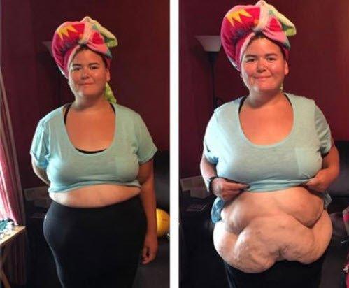 100 kilo verdi şimdi görenler güzelliğine hayran kalıyor!