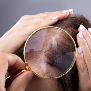 Saç dökülmesi üç aydan uzun sürüyorsa dikkat!