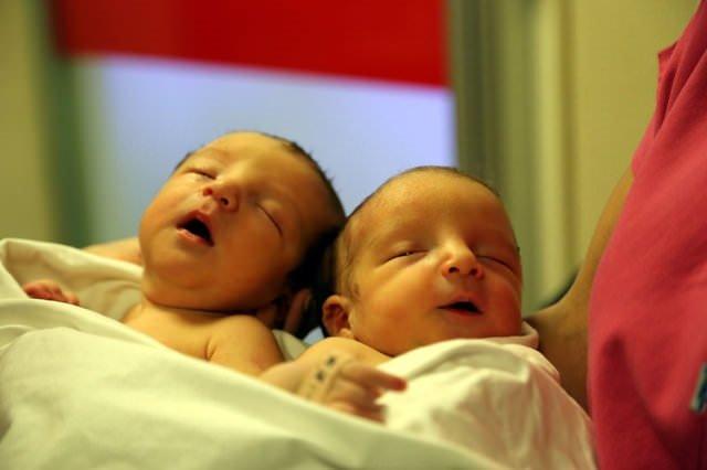Yapışık ikizler dünyaya geldi