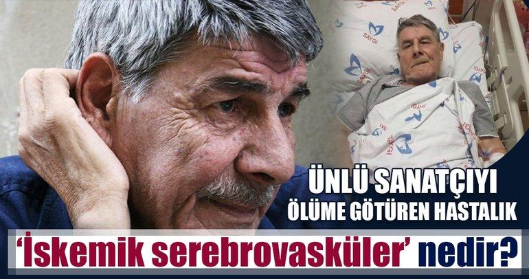 Hayatını kaybeden ünlü oyuncu Ercan Yazgan'ın hastalığı 'İskemik serebrovasküler' nedir?