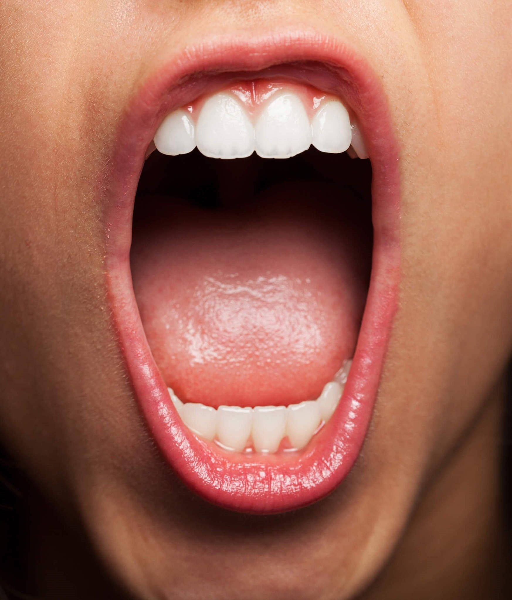 Широкий рот картинки