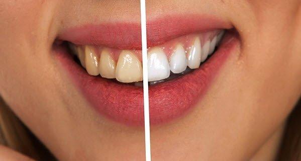 Evde diş beyazlatmanın püf noktaları