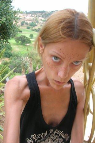 Isabella Caro anoreksiyadan öldü...