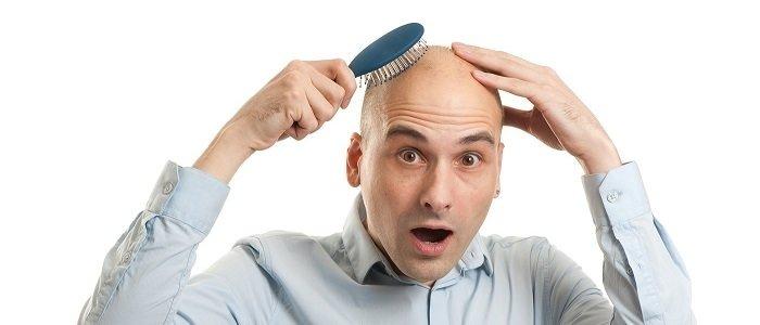 Saç dökülmesinin başlıca sebepleri nelerdir?