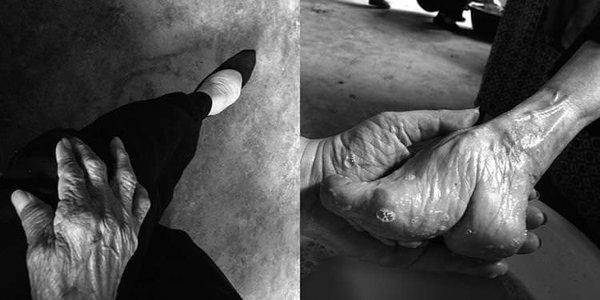 Güzellik uğruna ayaklarına öyle bir şey yaptı ki
