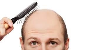 Saç ekiminden sonra kesinlikle tüketmeyin!