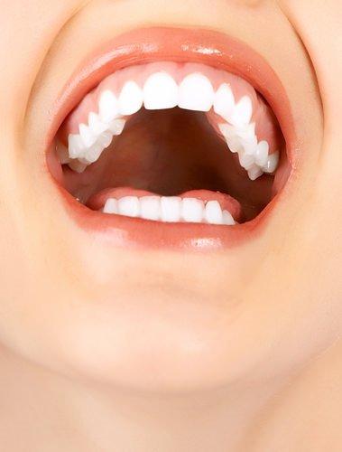 Diş eti kaşıntısı neden olur, nasıl geçer?