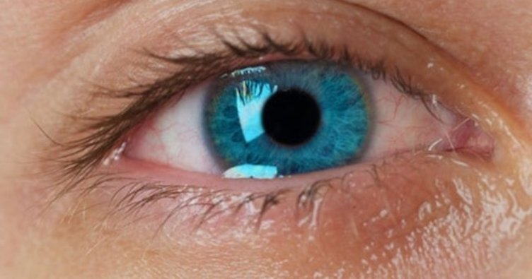 Göz sulanması neden olur? Nasıl tedavi edilir?