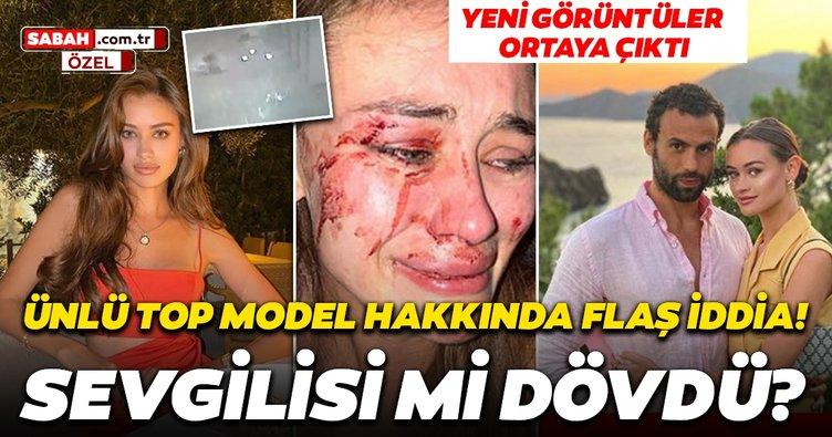 Son dakika haberi: Daria Kyryliuk'un darp olayında flaş gelişme! Olay iddia ile ilgili yeni görüntüler ortaya çıktı