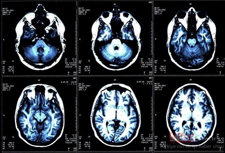 Beynin en önemli gıdası olduğu kantlandı!