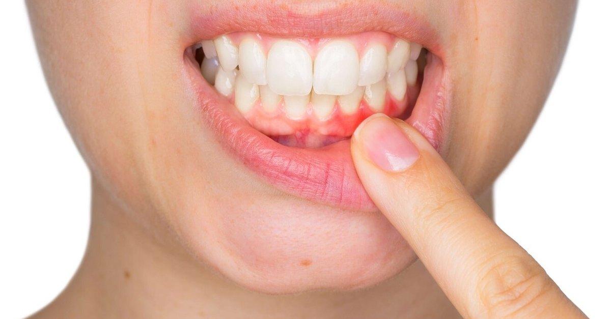 Diş kökü iltihabı nelere yol açar? - Son Dakika Haberler