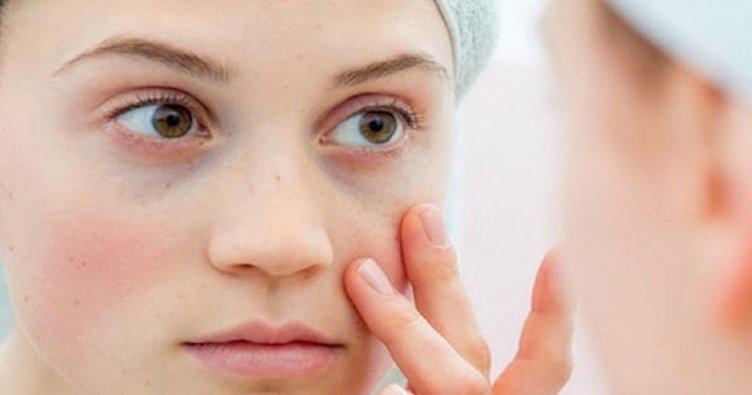 Lupus SLE hastalığı nedir? SLE Lupus hastalığı belirtileri nelerdir?