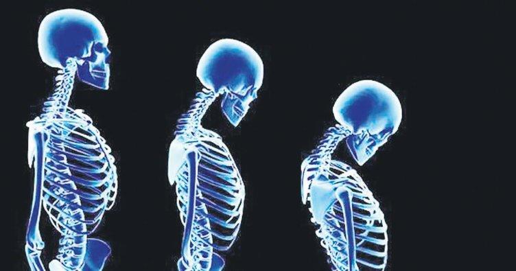 Dünyanın korkulu rüyası osteoporoz