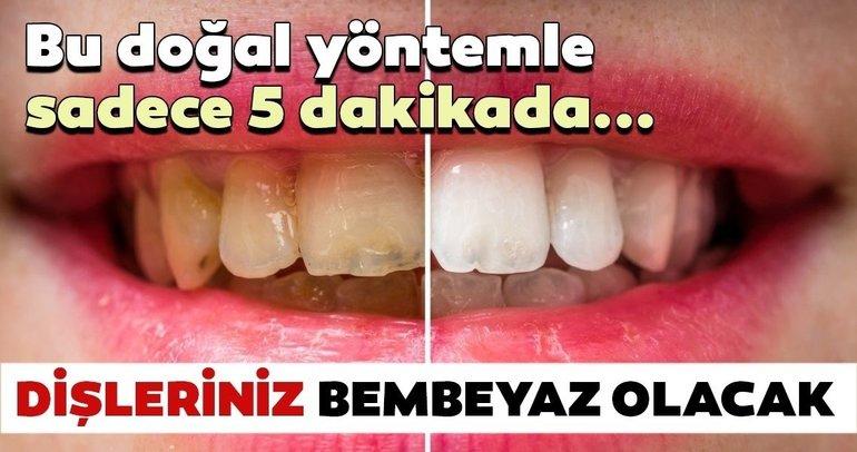 Bu yöntemle dişleriniz bembeyaz olacak!
