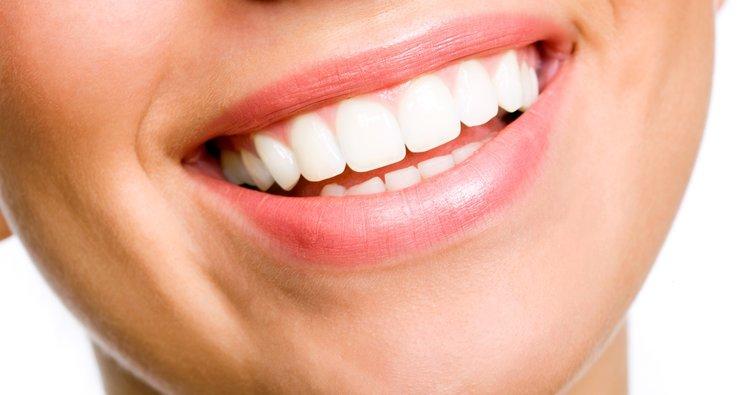 Bozuk dişler gülme problemine yol açıyor!