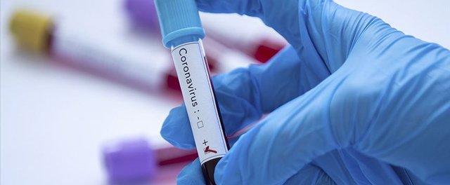Koronavirüsü 15 dakikada tespit edilecek