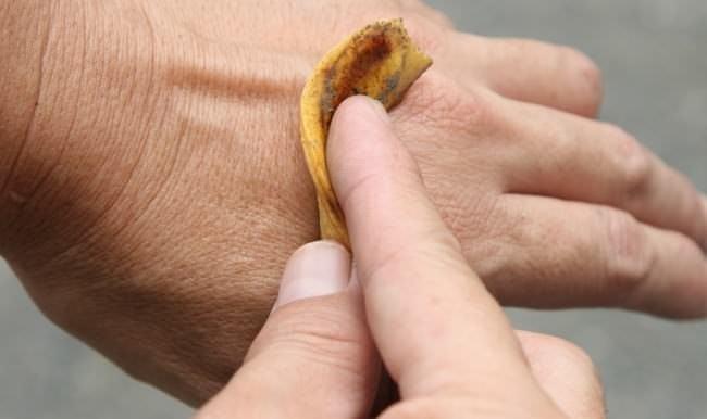 Muz kabuğunun inanılmaz faydaları
